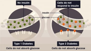 differences between type 1 diabetes and type 2