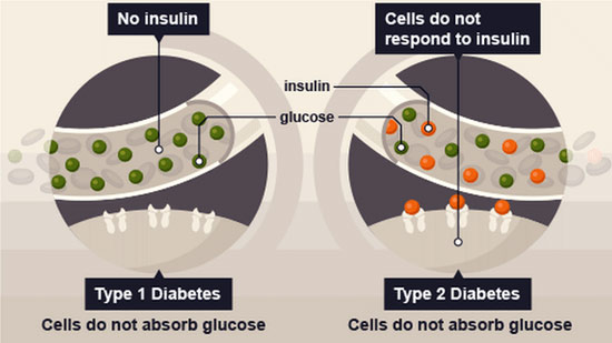 Image result for type 1 and type 2 diabetes